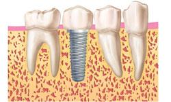 implantes dentales sin cirugia madrid