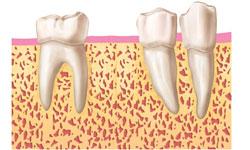 implantes dentales inmediatos madrid