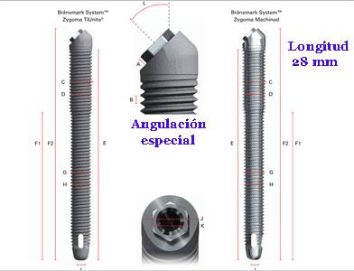 implante dental cigomatico