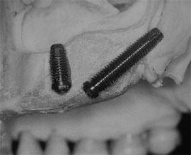 implante dental pterigoideo