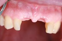 caso de implantes dentales especialistas en madrid
