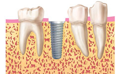 implantes dentales carga inmediata