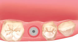 implantes dentales inmediatos madrid