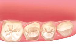 implantes dentales dientes momento