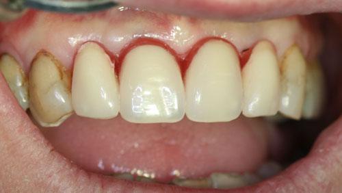 factores de crecimiento para implantes dentales