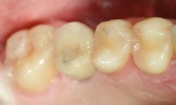 Implantes dentales dificiles Dentista en Madrid