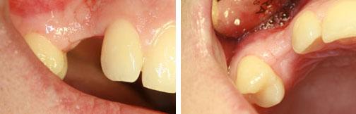 casos complejos de implantes dentales