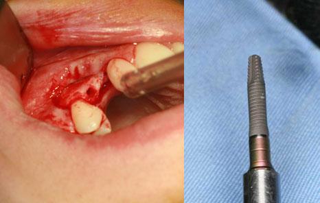 implantes dentales con poco hueso - Dentista en Madrid