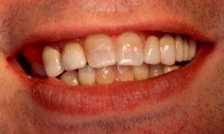mejorar estetica con ortodoncia e implantes dentales