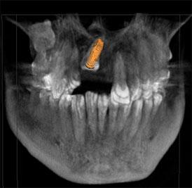 traumatismos implantes dentales madrid