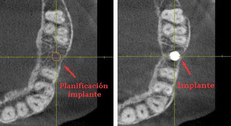 planificacion de implantes con ordenador