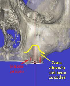 elevacion de seno quirurgica