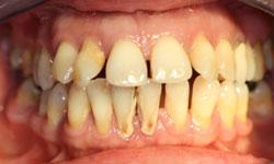 implantes-dentales-protesis-hibrida-1.jpg