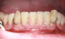 implantes-dentales-protesis-hibrida-2.jpg