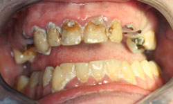 solucion-implantes-protesis-porcelana_1.jpg