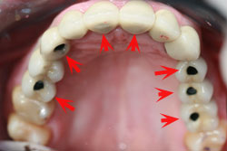 solucion-implantes-protesis-porcelana_2.jpg