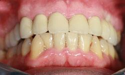 solucion-implantes-protesis-porcelana_3.jpg