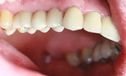 solucion-implantes-protesis-porcelana_5.jpg