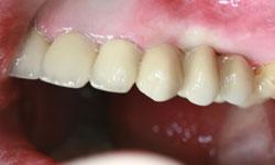 solucion-implantes-protesis-porcelana_6.jpg