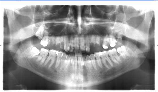 solucion-implantes-protesis-porcelana_opg.jpg