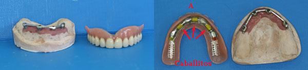 protesis-sobre-implantes_4.jpg
