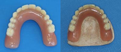protesis-sobre-implantes_5.jpg