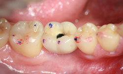 implante-unitario_4.jpg