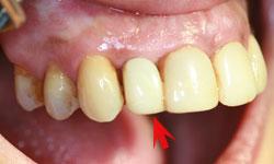 implante-corona-inmediata_3.jpg