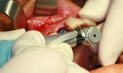 implante unitario madrid