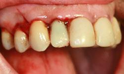 implante-corona-inmediata_7.jpg