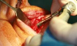 implantes_varios-dientes (5).jpg