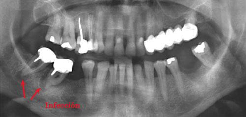 varios-implantes_1.jpg