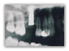 especialistas en elevacion de seno maxilar en Madrid