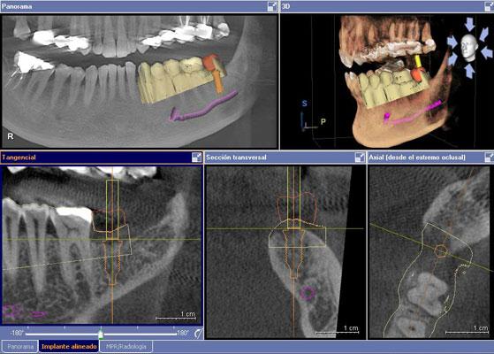 procedimiento en implantes dentales