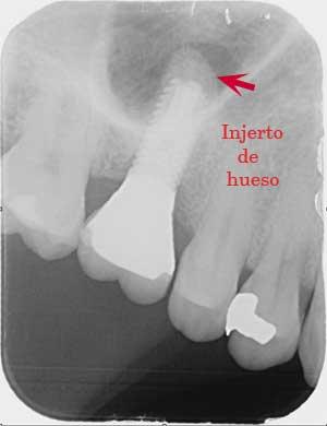 elevacion de seno con osteotomos profesionales en madrid