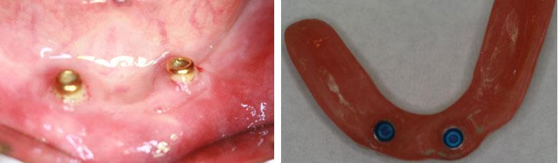protesis-implantes-dentales-locators_2.jpg