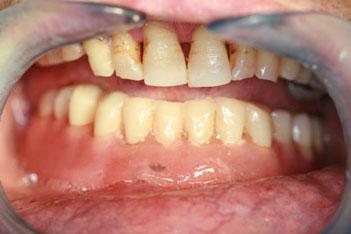 protesis-implantes-dentales-locators_3.jpg