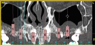 planificar los implantes dentales con tecnologia Simplant